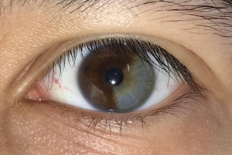 Partial Heterochromia Unique Traits